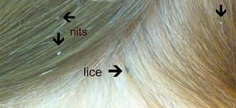 how to check for head lice fresh
