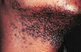 how to get rid of ingrown hair cyst