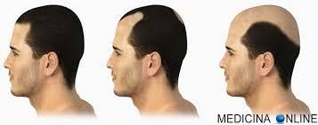 Alopecia androgenetica maschile e femminile: età, sintomi e cura ...