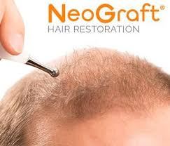 how much does neograft hair restoration