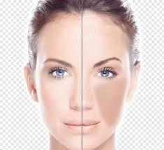 laser hair removal intense pulsed light