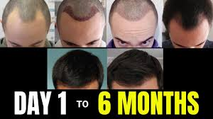 hair transplant update