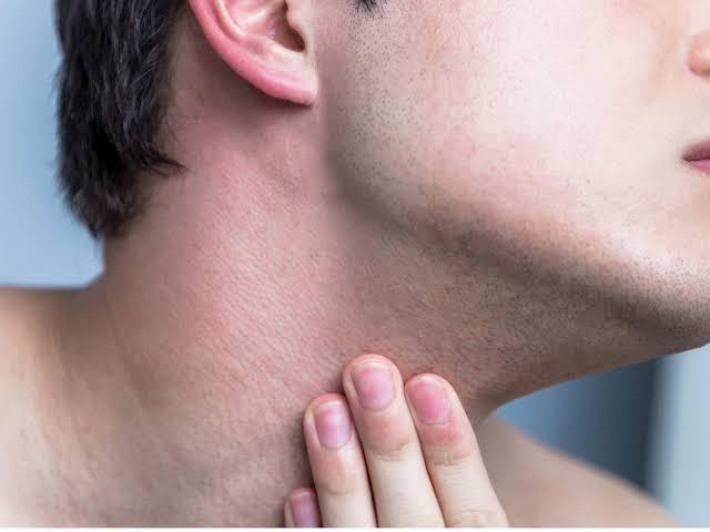 "Image result for razor burn"""