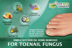 home remes for toenail fungus