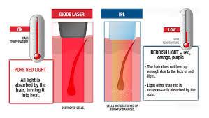 diode vs ipl laser hair removal