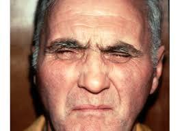 blepharospasm denver eyelid twitching