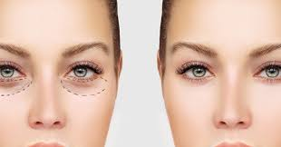 can i wear makeup after eyelid surgery