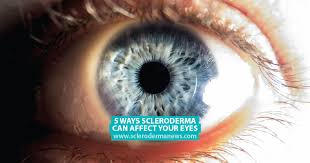 5 ways scleroderma can affect your eyes