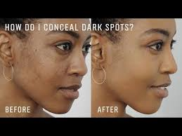 how to cover dark spots and even out