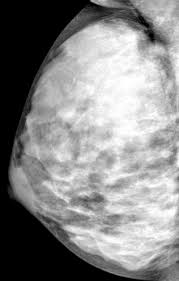 Extremely Dense Breast Tissue [image] | EurekAlert! Science News