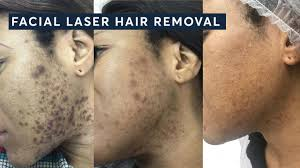 ingrown hairs with laser hair removal
