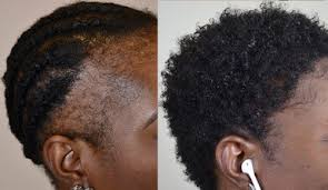 traction alopecia archives hair