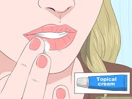 treat a cold sore or fever blisters