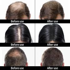 caboki hair loss concealer black dk med