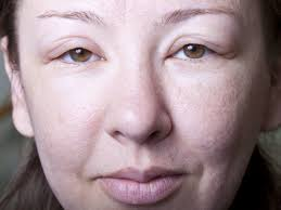 swollen lips causes and treatment