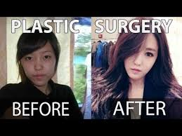 10 kpop stars before and after plastic