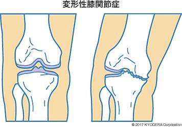 """「変形性膝関節症」の画像検索結果"""""""