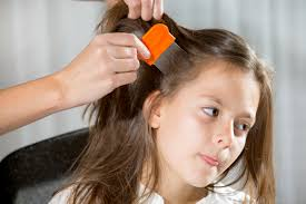 how to get rid of head lice old