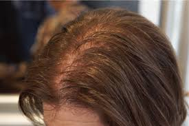 as they age women lose their hair too