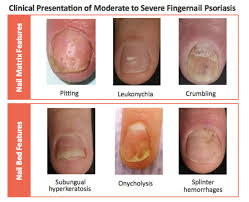 systemic therapy for nail psoriasis