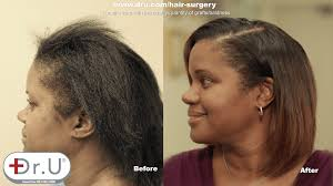 best treatment for traction alopecia