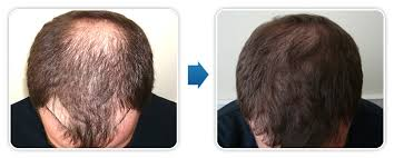 hair transplant chirurgia plastyczna