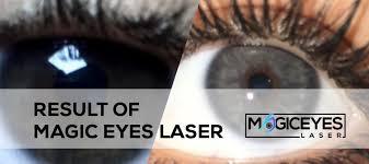 result of eye color change laser eye