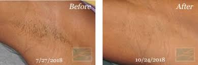 laser hair removal new orleans