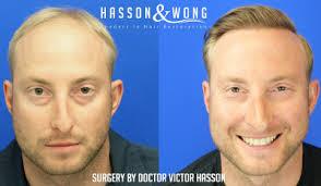 incredible hair transplant surgery