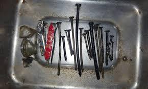 peshawar doctors perform surgery to