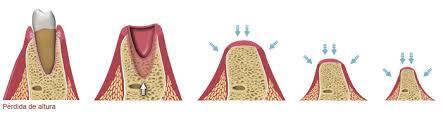 Qué sucede cuando se pierde un diente?   Clínica Dental Smilodon