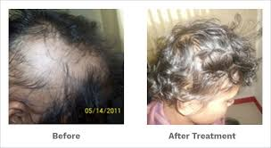 can homeopathy help your hair grow back