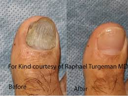 toenail fungus doctor in lima oh