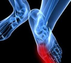toenail fungus physicians warn against