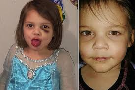 Disturbing pics reveal how four-year-old girl was 'battered and abused for  months' before she was 'beaten to death'