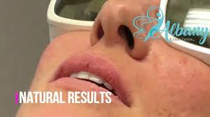 laser lip plumping liplase results