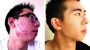 cover up acne full coverage routine