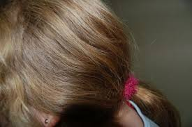 pictures of head lice on hair