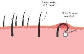 how to get rid of ingrown hair