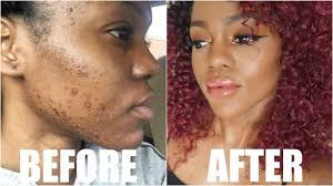 acne s dark spots with makeup
