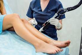 laser hair removal houston laser hair