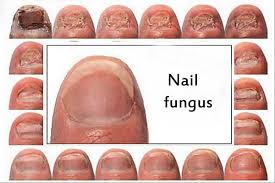 nail fungus and the best treatment for