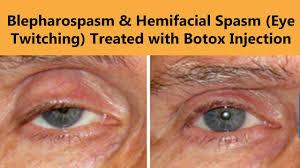 botox injection for blepharospasm