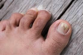 best toenail fungus treatment 2020
