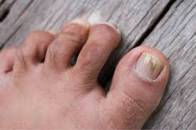 best toenail fungus treatment 2020