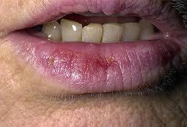 what skin cancer precancerous lesions