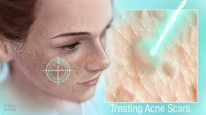 treatment options for acne s that
