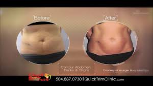 quick trim weight loss clinic new