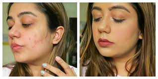how to cover acne or hide pimple scars