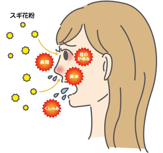 """「花粉症」の画像検索結果"""""""